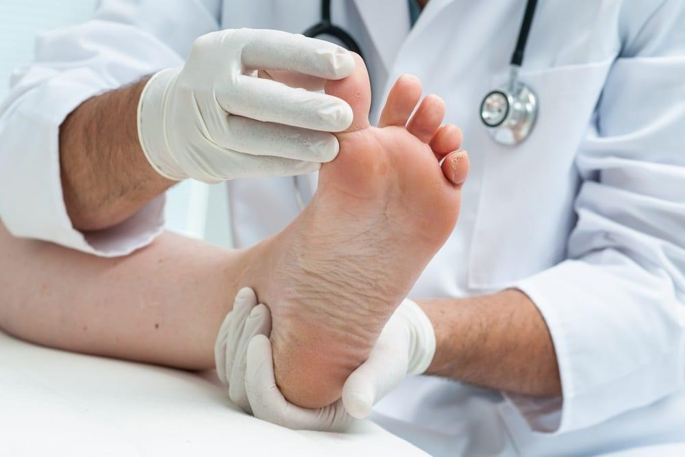 Tratamiento de juanetes a través de cirugía percutánea