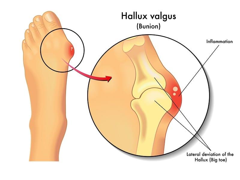 deformidad en el pie por hallux valgus