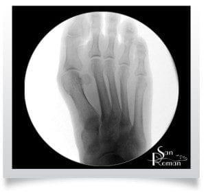metatarsalgia radiografía