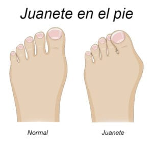 comparación de pie normal y pie con juanete