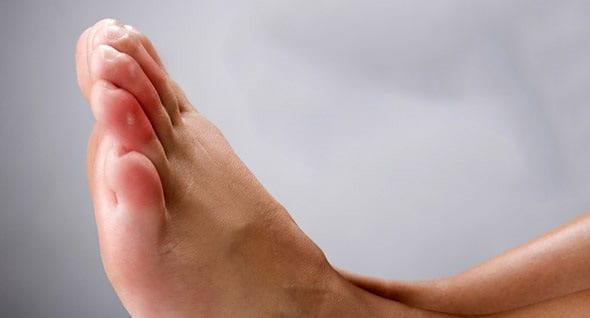 sabañones pies