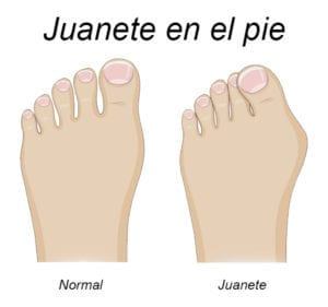 bunion normal