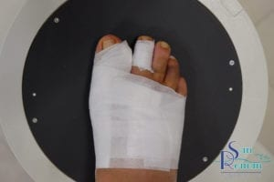 postoperative foot with bandage