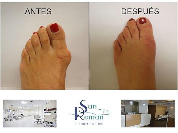 antes y después juanetes Clínica San Román