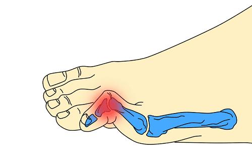 dedos en garra detalle clínica san román operación de juanetes