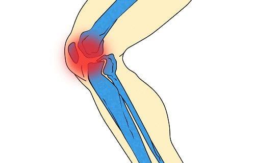 dolor de rodilla detalle clínica san román