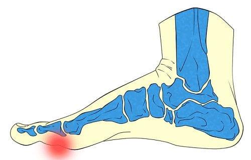 Chirurgie Mittelfuβknochen (Metatarsalgia)