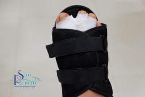 Fuß mit Verband und speziellem postoperativem Schuh