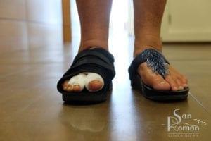 voeten van de patiënt met speciaal verband en postoperatieve schoen