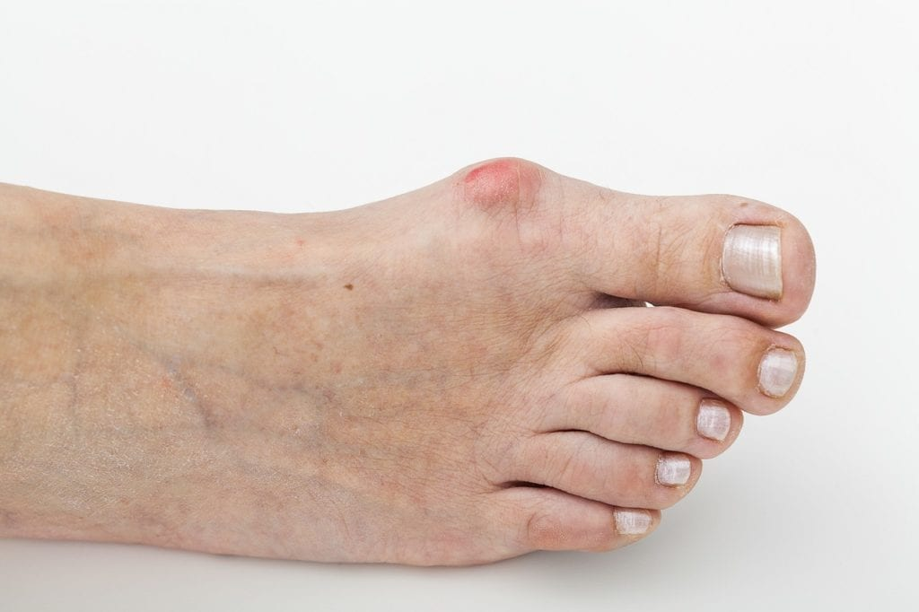 How to treat bunions effectively?