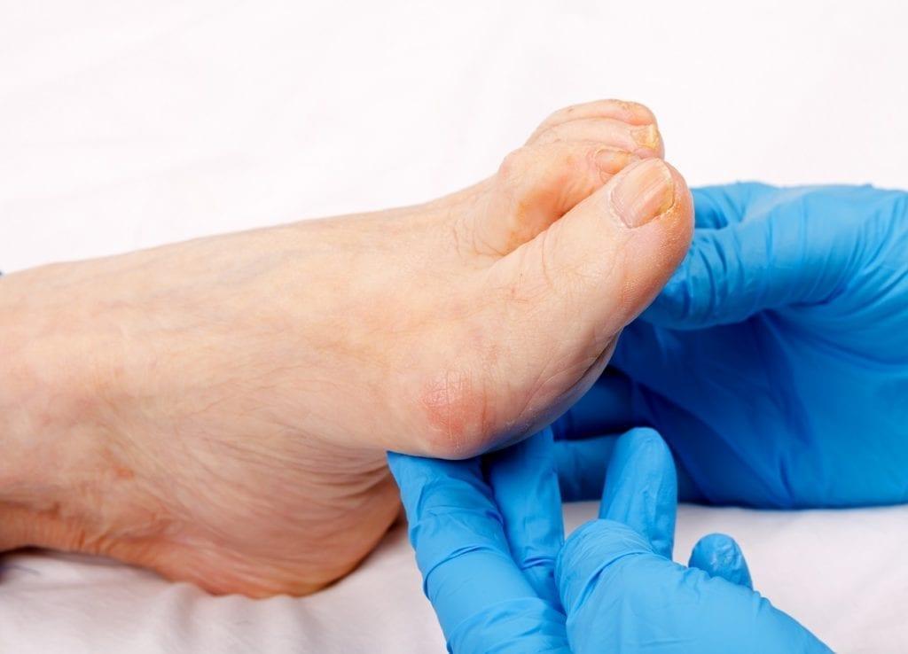 Se me han deformado los dedos de los pies ¿Qué puedo hacer?