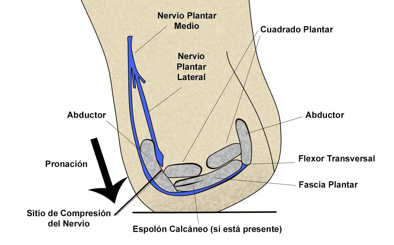 Atrapamiento de la primer rama del nervio plantar o nervio de Baxter. compresión del nervio de Baxter
