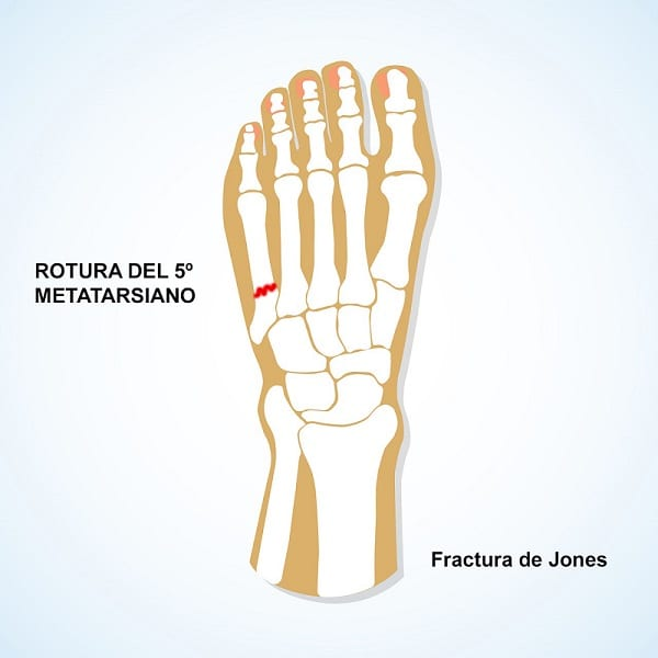 fractura de jones rotura del quinto metatarsiano