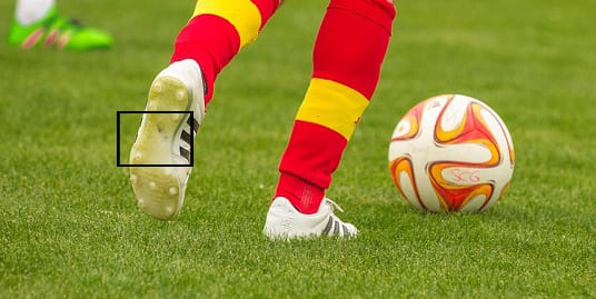 Football Injuries Jones Fracture
