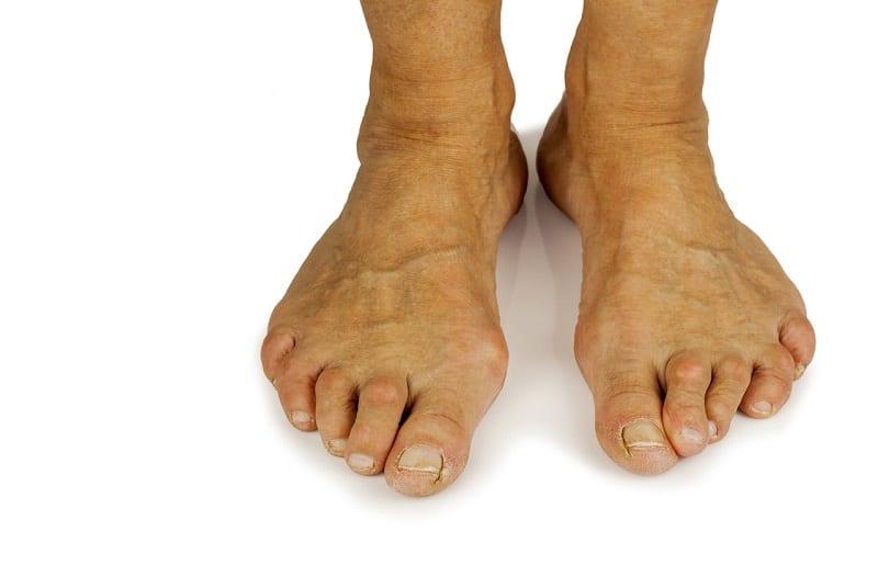 toes deformed