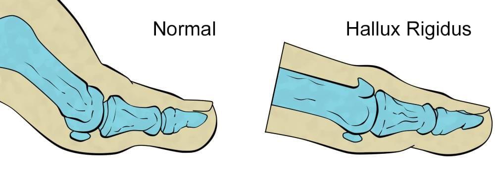ilustración de hallux rigidus en el dedo del pie