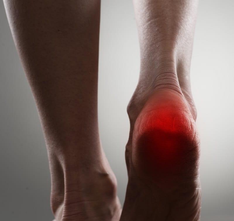 espolón calcaneo en el talón del pie