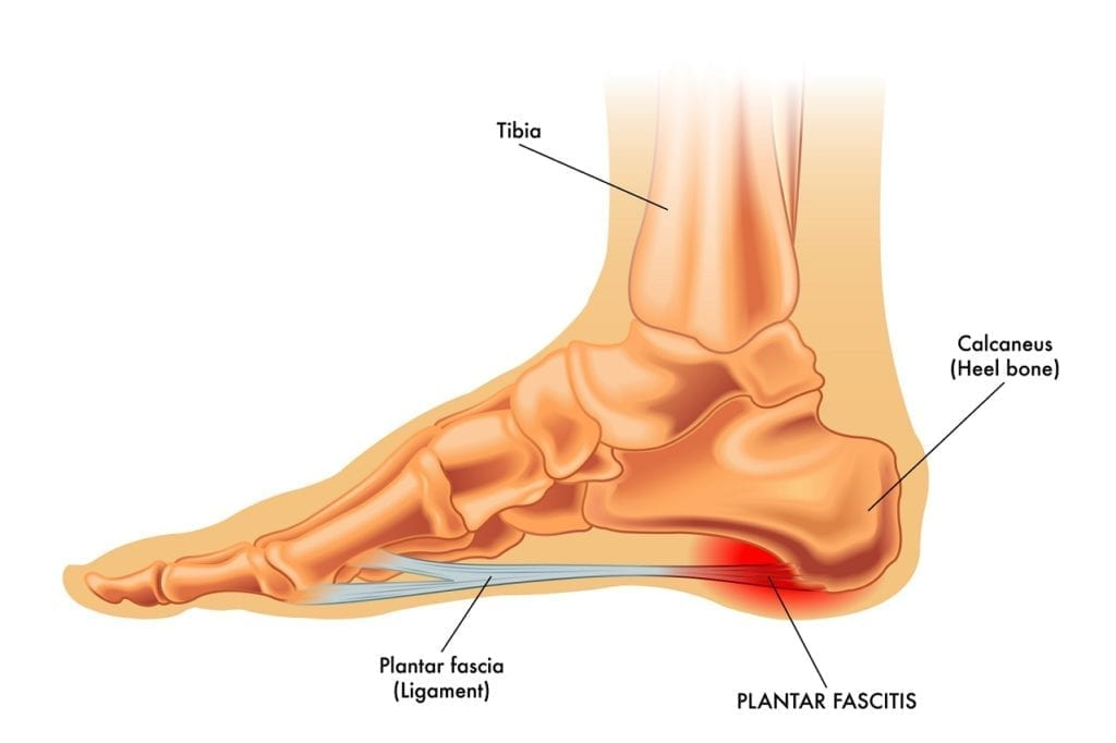 Fascitis Plantar. La causa más habitual de dolor en el talón