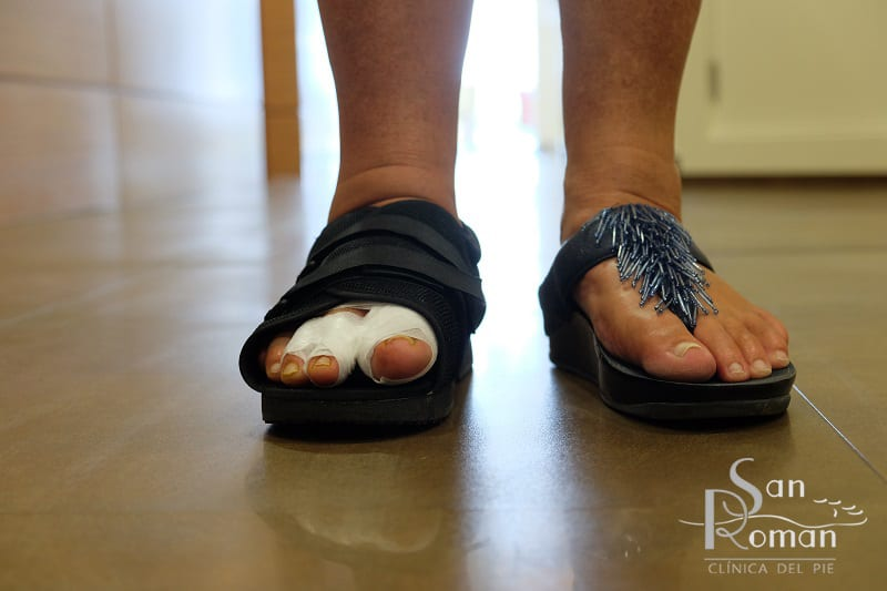 foot surgery bunion