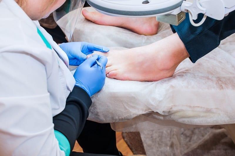 problema en los pies cuidados