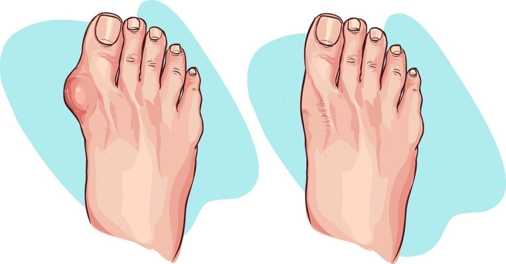 Do you suffer from bunions and claw toes?