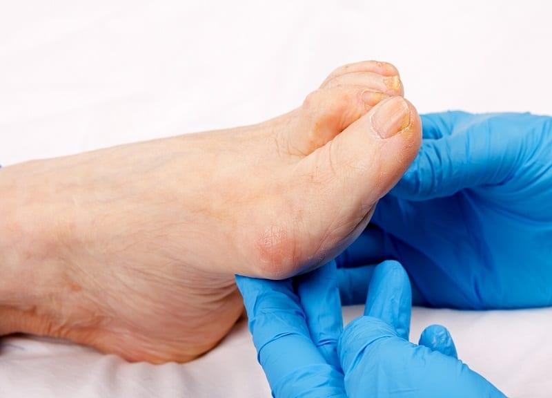 Mijn tenen zijn vervormd. Wat kan ik doen?