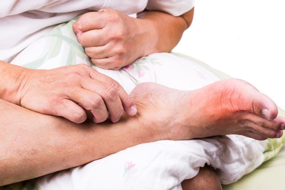 Ballenzehen, Mythen und Legenden über diese Fußdeformität