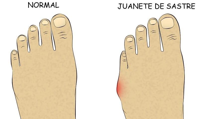 ¿Dolor en la parte lateral del pie? Cirugía mínimamente invasiva para el tratamiento del juanete de sastre