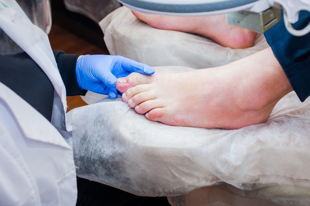 Cirugía podológica de mínima incisión, corrección rápida y sin traumas de los problemas del pie