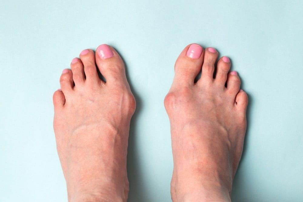 ¿Cómo prevenir los dolorosos y antiestéticos juanetes?