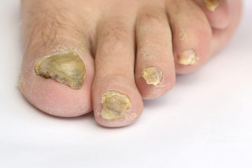 infección por hongos en los pies
