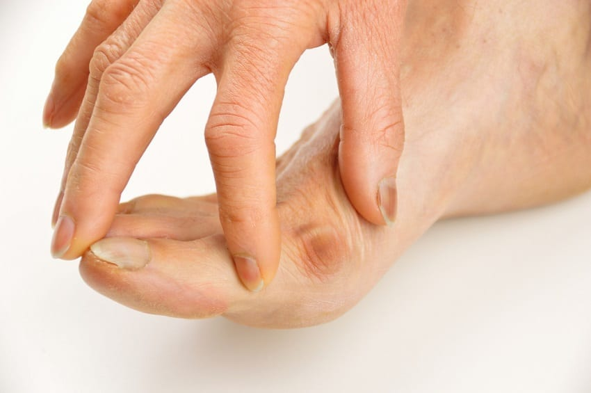 pies-con-juanetes-desarrollado