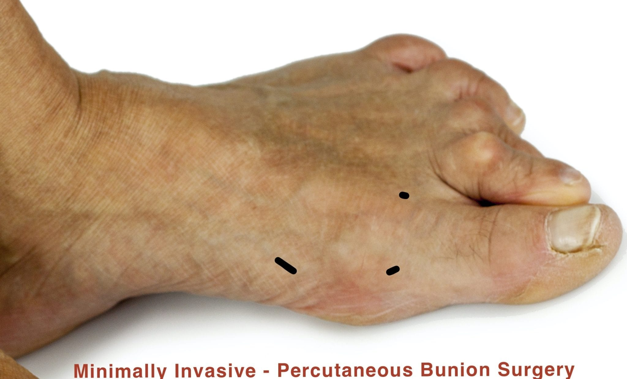 Minimally Invasive Bunion deformity. Feet deformity. Close up