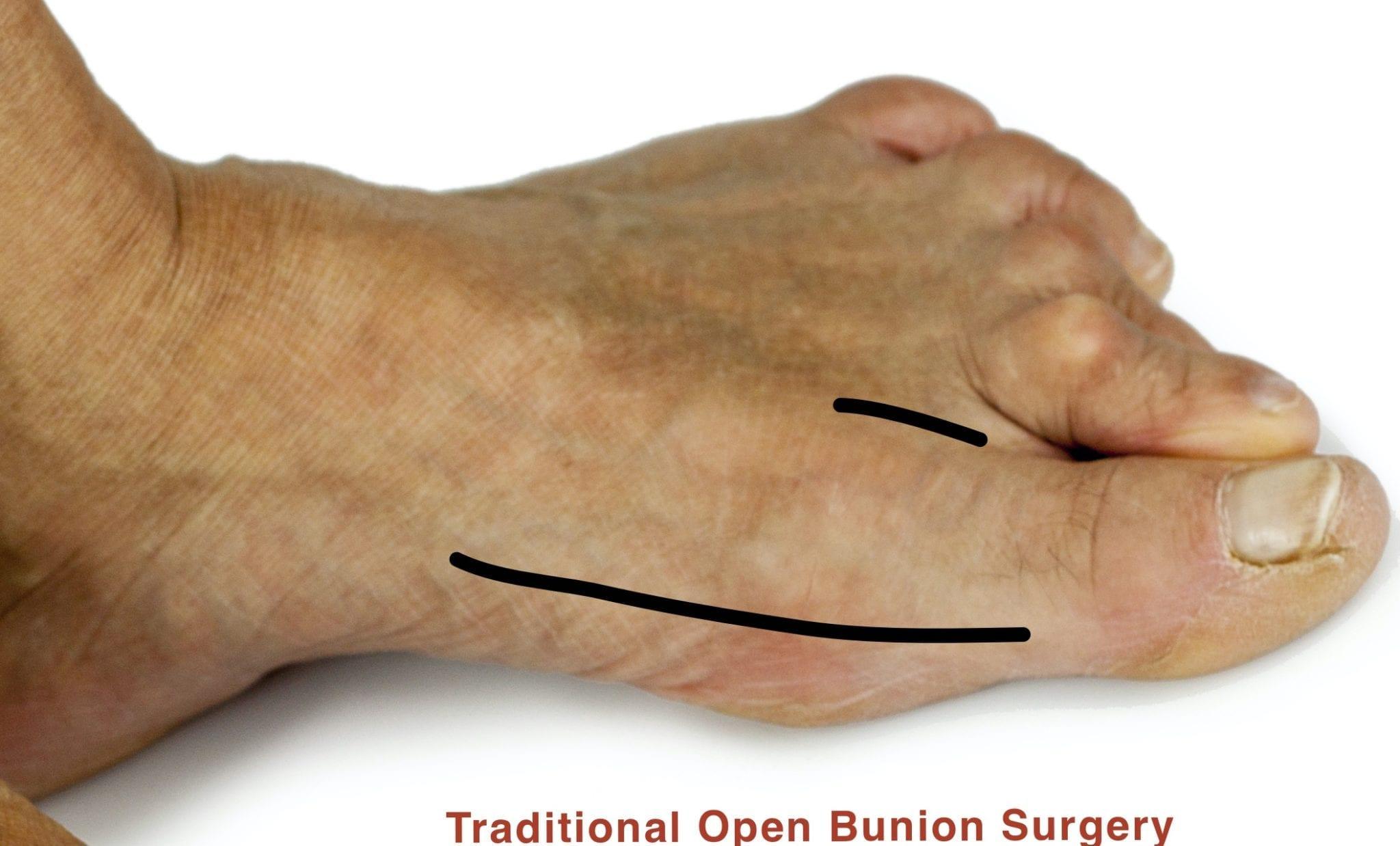 Bunion deformity