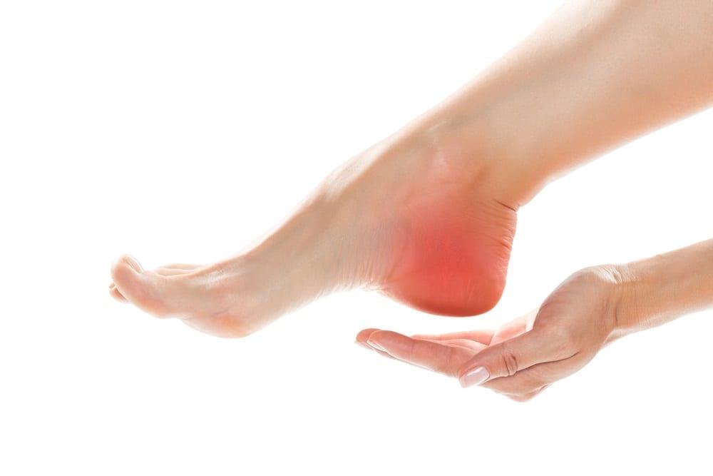 De hielspoor Symptomen en behandeling van deze voetconditie