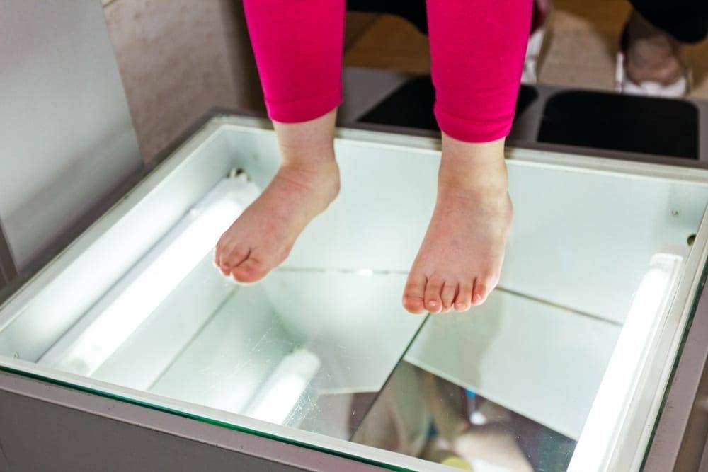 Estudio del pie plano