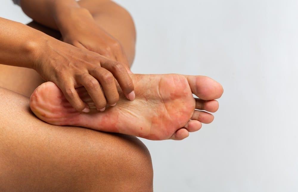 metatarsalgia en el pie