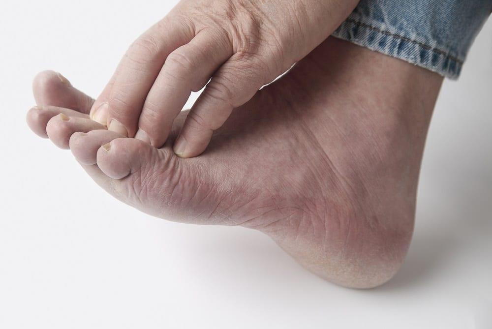 Manifestaciones en piel y pies del Covid-19