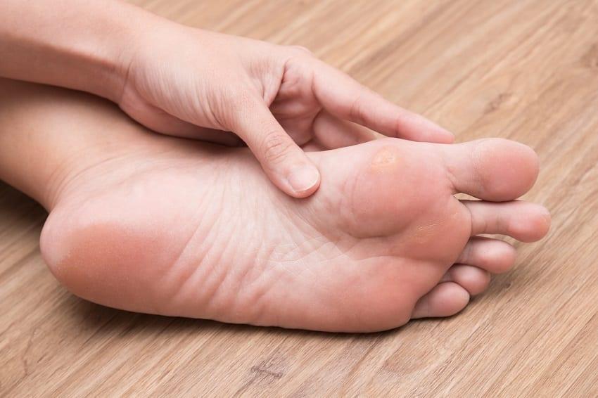 andere voetproblemen