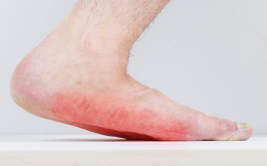 voetafwijkingen volwassen