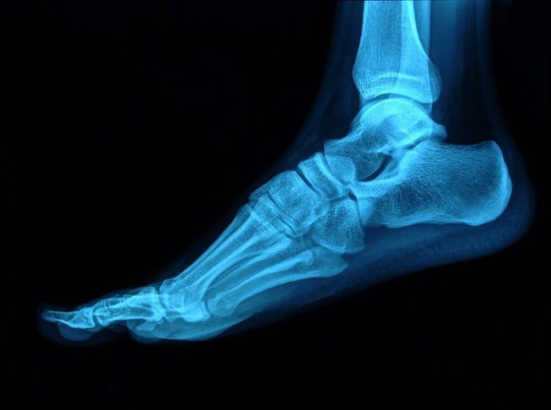 Percutane voetchirurgie