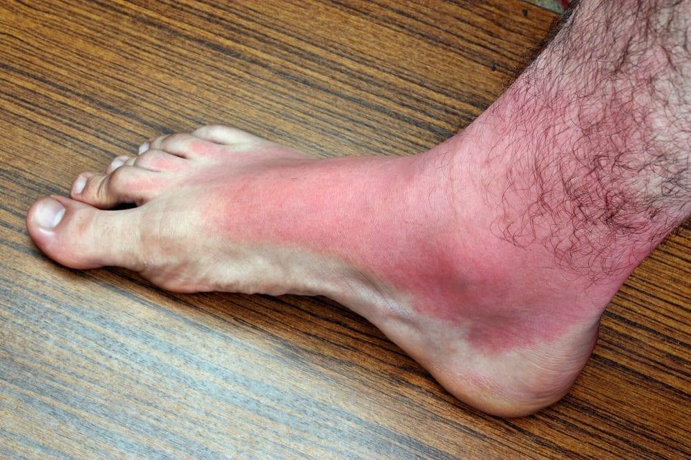 Pies quemados por el sol ¿Qué hacer y cómo prevenirlo en verano?