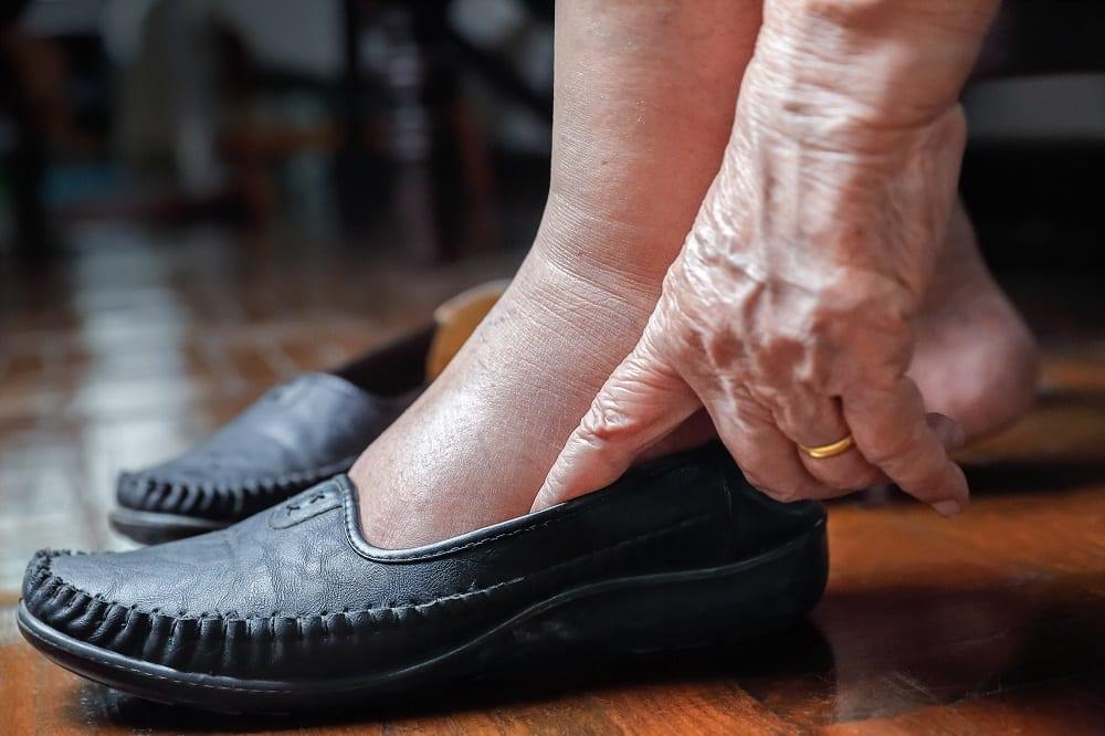 pies hinchados en mujer mayor