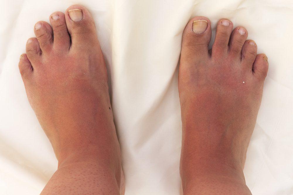 Fuerte quemadura solar en los pies