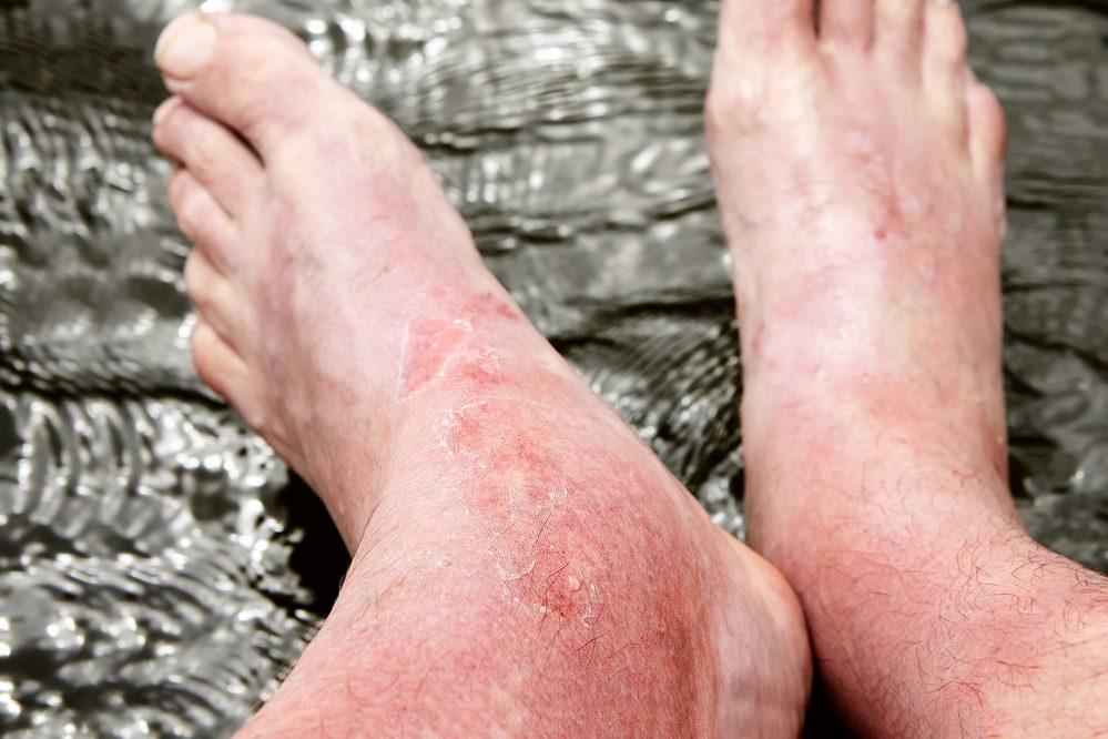 ¿Qué hacer ante una quemadura solar en los pies?
