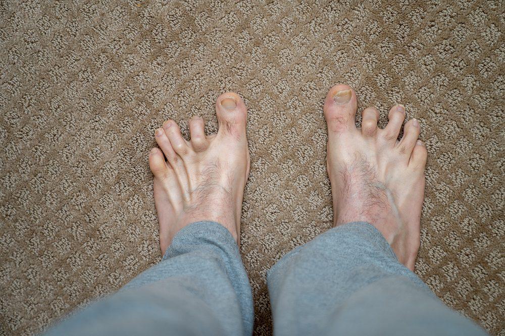 Hombres dedos de martillo antes de la cirugía