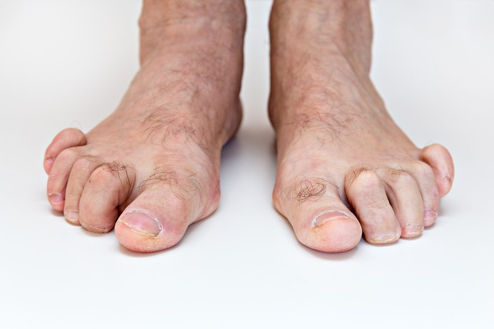 Dedos torcidos o desviados en los pies  ¿Qué está ocurriendo y cómo corregirlo?